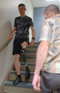 Man with a prosthetic leg, for prosthetics in Denver, CO, prosthesis, artificial leg, artificial limb and below and above the knee prosthetics call Creative Technology Prosthetic & Orthotic.