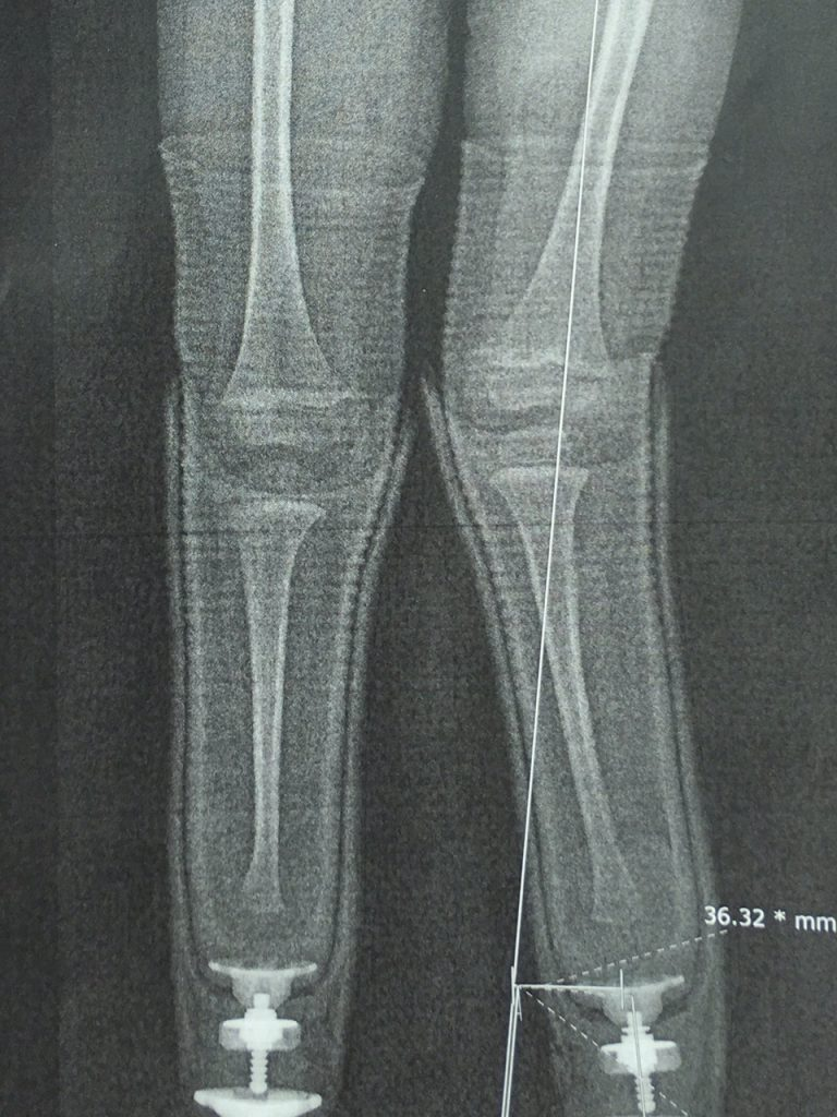 X-ray of legs, we provide prosthetics and orthotics in Denver, CO, artificial limb, artificial leg, pediatric orthotics and more - Creative Technology Prosthetics & Orthotics.